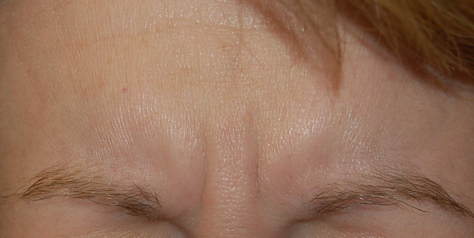 Before Treatment of BOTOX® Cosmetic