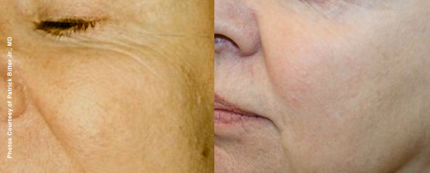 Treatment Result Forever Young BBL - Fotofacial