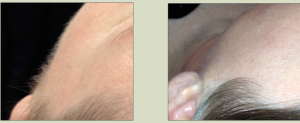 Before and After Photos- Dermaplaning