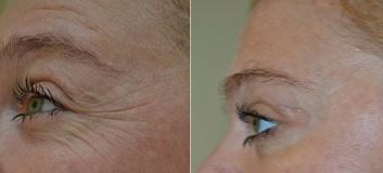 Botox- before and after- with your Charlotte Dermatologist