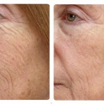 Halo- Sciton Profractional Laser from your Charlotte Dermatologist- DSCMD