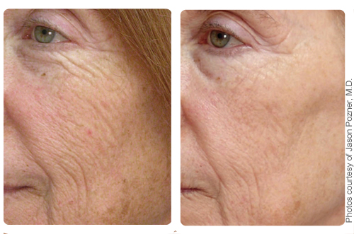 Can my damaged skin be rejuvenated by Halo in Charlotte, NC?