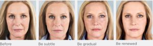 Sculptra Injectable- from Dermatology Specialists of Charlotte