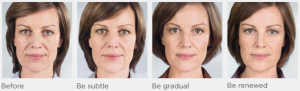 Sculptra- before and after photos