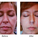 Fillers Juvederm Voluma and Ultra Plus - Charlotte NC