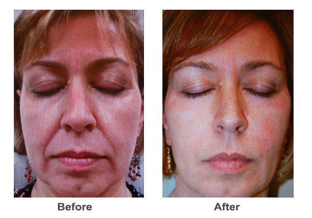 Using Dermal Fillers And Injectables Like Juvederm