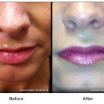 Juvederm Ultra for Lip Augmentation