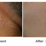 Profractional surgical scars