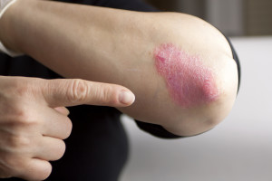 Psoriasis- contact your local Charlotte dermatologist for help