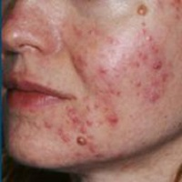 Are there tips to help me manage rosacea during Charlotte winters?