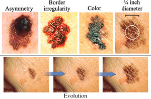 Signs of Skin Cancer.