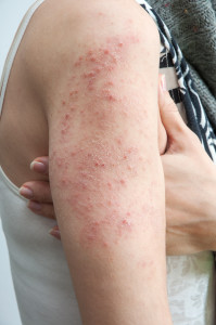 Problems with Excema, contact your Charlotte Dermatologist