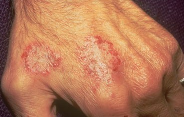 how to get rid of contact dermatitis rash