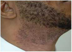 Laser Hair Removal Before - Charlotte, NC