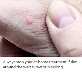 wart treatments from Dermatology Specialists of Charlotte