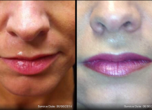 DSCMD- Juvederm Ultra for Lip Augmentation