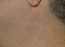 DSCMD- Profractional Laser for Surgical Scars- after 3 treatments