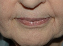 DSCMD- Profractional for Deep Wrinkles-After 2 treatments