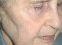 DSCMD- Profractional for Deep Wrinkles- after 2 treatments