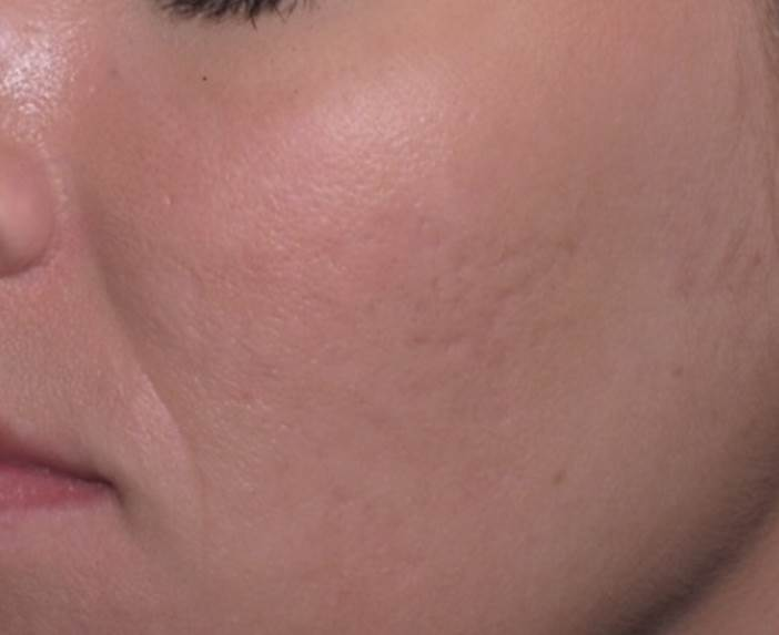 Acne scars in Charlotte, NC