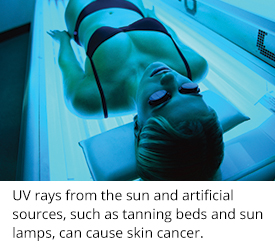 DSCMD- dangers of indoor tanning- from your Ballantyne Dermatologist