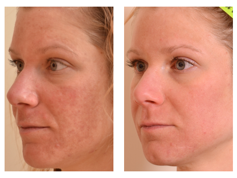 Halo By Sciton Dermatology Specialists Of Charlotte