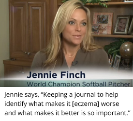 Atopic Dermatitis- Jennie Finch