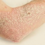 Psoriasis - Problems with my skin Charlotte, NC