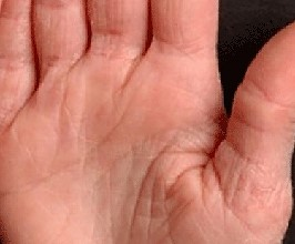 You could have ichthyosis vulgaris- learn more here