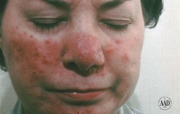 Rosacea Problems with my skin - Charlotte, NC