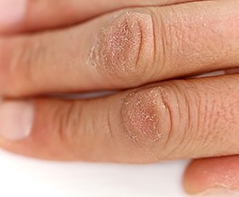 Do you have hand eczema- visit your Ballantyne dermatologist today