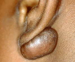 Keloid- symptoms and causes- from your Charlotte dermatologist