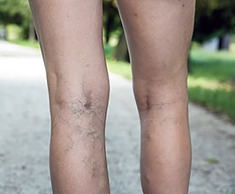 Leg veins and treatment options from your Charlotte dermatologist
