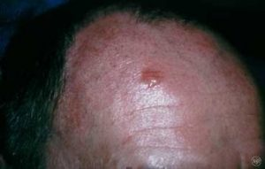 Basal cell carcinoma - Charlotte, NC