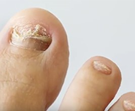 How to prevent nail fungus- consult your charlotte dermatologist