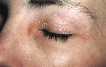 contact dermatitis - Charlotte, NC