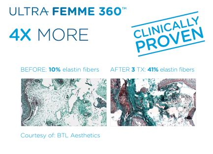 Ultra Femme- Clinically proven- contact