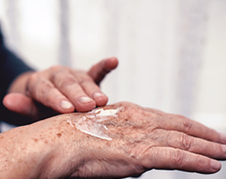 Can a dermatologist offer solutions to rejuvenate aging hands?