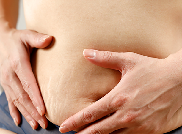 Is there minimally invasive body contouring in Charlotte?
