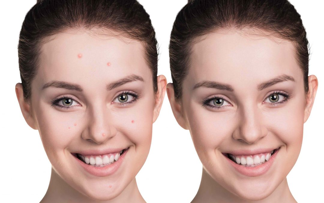 Acne in Charlotte NC FAQs